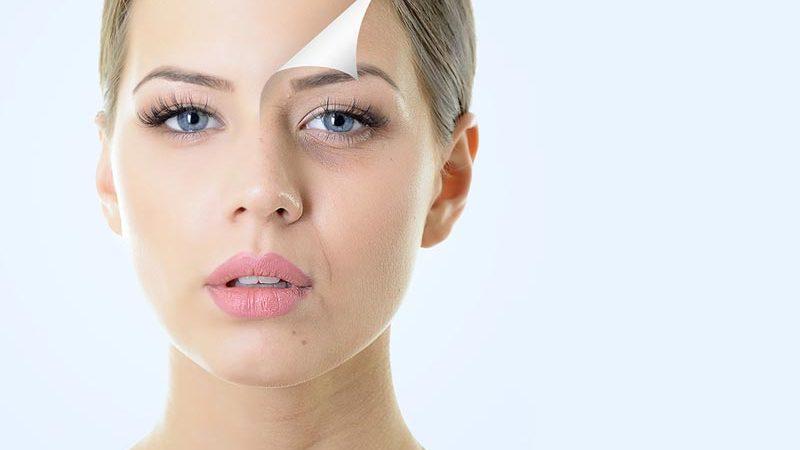 Benefits-of-Botox